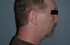 Chin Enhancement Patient 79450 Before Photo # 1