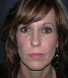 Lip Augmentation Patient 88890 After Photo Thumbnail # 2