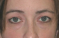 Eyelid Surgery Patient 19769 Before Photo # 1