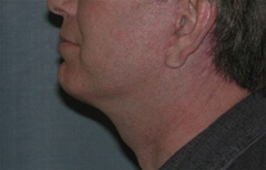 Face Lift and Neck Lift Patient 77169 After Photo # 6