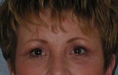 Forehead Lift - Browlift Patient 66484 After Photo # 2