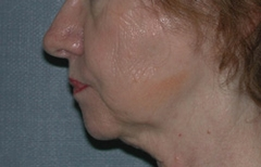 Chin Enhancement Patient 32040 Before Photo # 1
