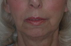Chin Enhancement Patient 67772 Before Photo # 3
