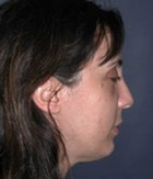 Cheek Enhancement Patient