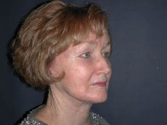 Facelift Patient 25056 After Photo # 4