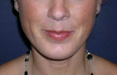 Chin Enhancement Patient 58250 After Photo # 4