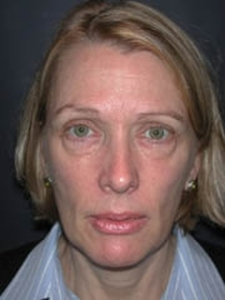 Forehead Lift - Browlift Patient 72896 Before Photo # 1