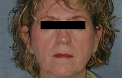 Facelift Patient 51465 Before Photo # 1