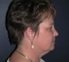 Face Lift and Neck Lift Patient 98257 Before Photo Thumbnail # 5