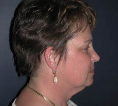 Face Lift and Neck Lift Patient 98257 Before Photo # 5