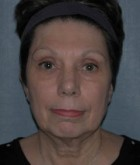 Face Lift and Neck Lift Patient