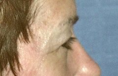 Eyelid Surgery Patient 29507 Before Photo # 3