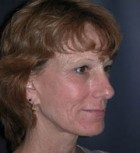 Lip Augmentation Patient 70436 Before Photo Thumbnail # 3