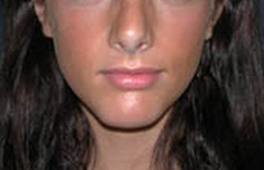 Chin Enhancement Patient 98890 After Photo # 4