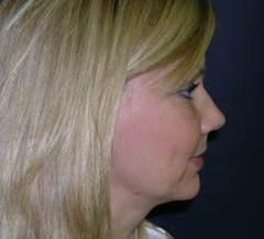 Forehead Lift - Browlift Patient 54556 After Photo # 6