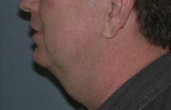 Face Lift and Neck Lift Patient 77169 Before Photo # 5