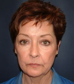 Face Lift and Neck Lift Patient 62384 Before Photo # 1