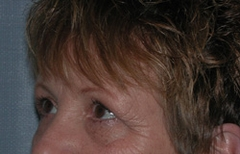 Forehead Lift - Browlift Patient 66484 Before Photo # 5