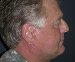 Face Lift and Neck Lift Patient 38637 After Photo # 6