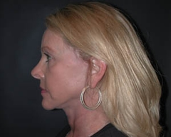 Face Lift and Neck Lift Patient 81195 After Photo # 6