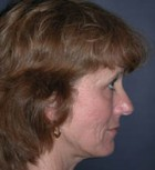 Lip Augmentation Patient 70436 Before Photo Thumbnail # 5