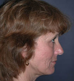 Lip Augmentation Patient 70436 Before Photo # 5
