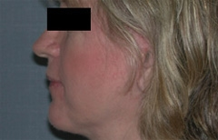 Facelift Patient 51465 After Photo # 6