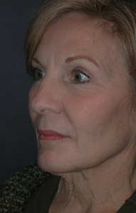 Facelift Patient 33485 Before Photo # 3