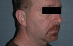 Chin Enhancement Patient 79450 Before Photo # 5
