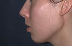 Chin Enhancement Patient 68635 Before Photo # 1