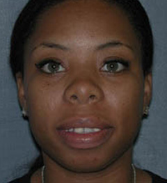 Lip Augmentation Patient 20077 Before Photo # 1
