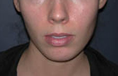 Chin Enhancement Patient 68635 Before Photo # 3