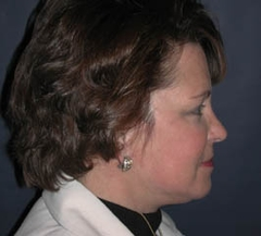 Face Lift and Neck Lift Patient 98257 After Photo # 6