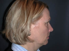 Face Lift and Neck Lift Patient 54162 Before Photo # 5