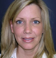 Facelift Surgery Before Patient Patient Oklahoma City OK