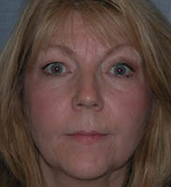 Botox® Cosmetic Patient 24957 Before Photo # 1