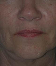 Skin Rejuvenation Patient 57347 Before Photo # 1