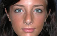 Rhinoplasty Patient 28711 After Photo # 2