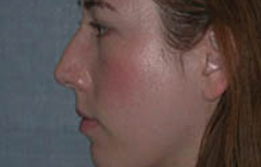 Rhinoplasty Patient 96001 Before Photo # 3