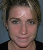 Skin Rejuvenation Patient 49672 Before Photo Thumbnail # 1