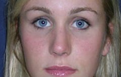 Rhinoplasty Patient 21385 After Photo # 2
