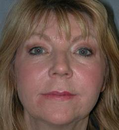 Botox® Cosmetic Patient 24957 After Photo # 2