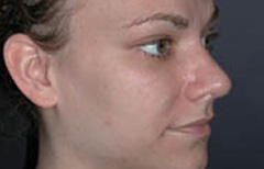 Rhinoplasty Patient 29395 After Photo # 2