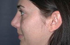 Rhinoplasty Patient 11777 After Photo # 6
