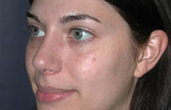 Rhinoplasty Patient 11777 After Photo # 4