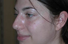 Rhinoplasty Patient 11777 Before Photo # 3