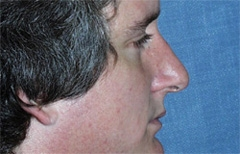 Rhinoplasty Patient 68566 Before Photo # 3