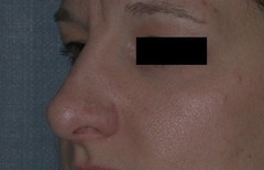 Rhinoplasty Patient 10497 After Photo # 6