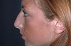 Rhinoplasty Patient 28711 Before Photo # 5