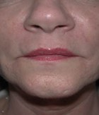 Skin Rejuvenation Patient